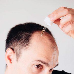 El tratamiento varía en función del tipo de alopecia