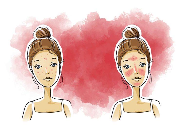 principal-rosacea-bellezajpg